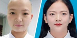 Những hình ảnh xúc động của bác sĩ Vũ Hán mặt hằn khẩu trang, nữ đầu cạo trọc vì chống dịch corona
